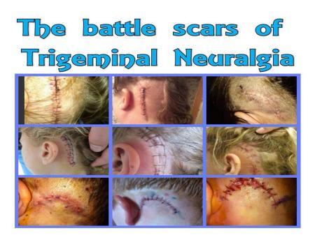 Battle Scars of MVD